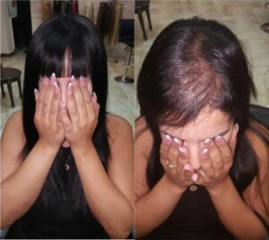 יחידת שיער